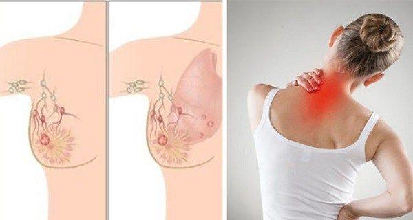 simptome cancer la cap