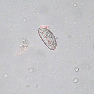 Enemas pinworm ,ce culoare este oul viermilor la om