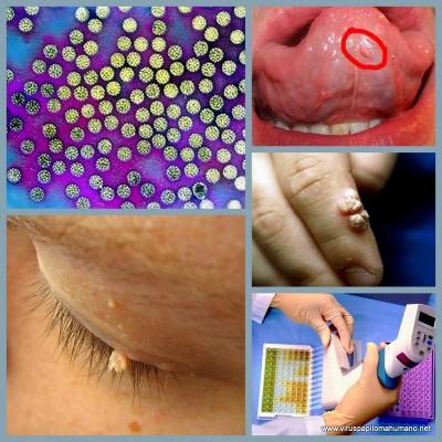 el virus de papiloma humano en la mujer)