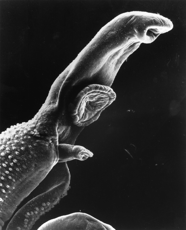 schistosomiasis que es