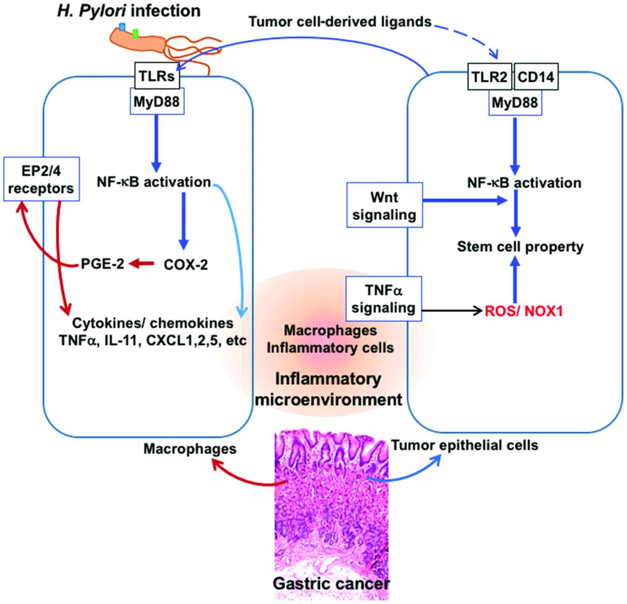 gastric cancer ncbi