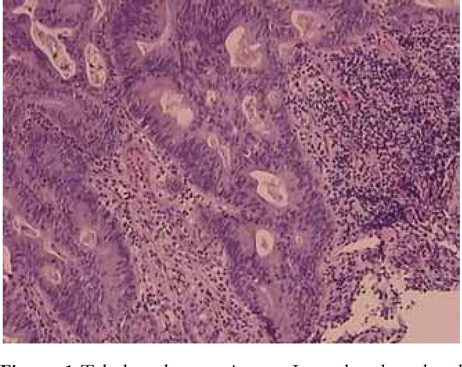 gastric cancer pathology)