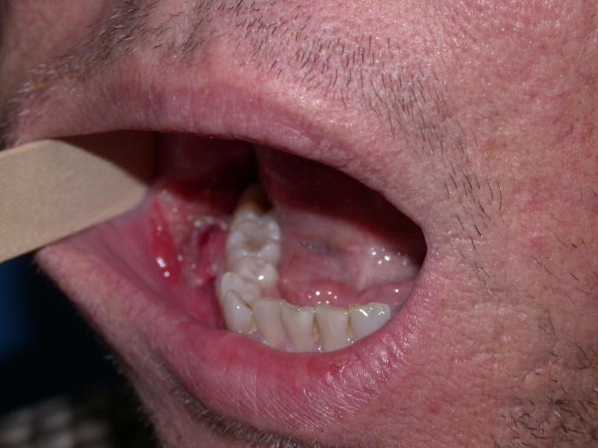 hpv on mouth cancerul hodgkin