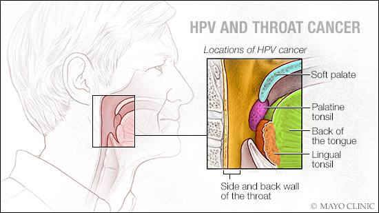 hpv-related throat cancer on the rise