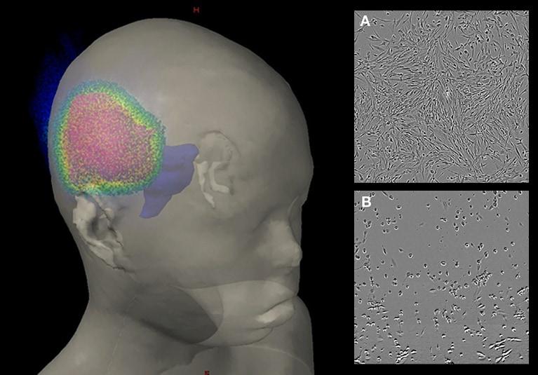 hpv brain tumors