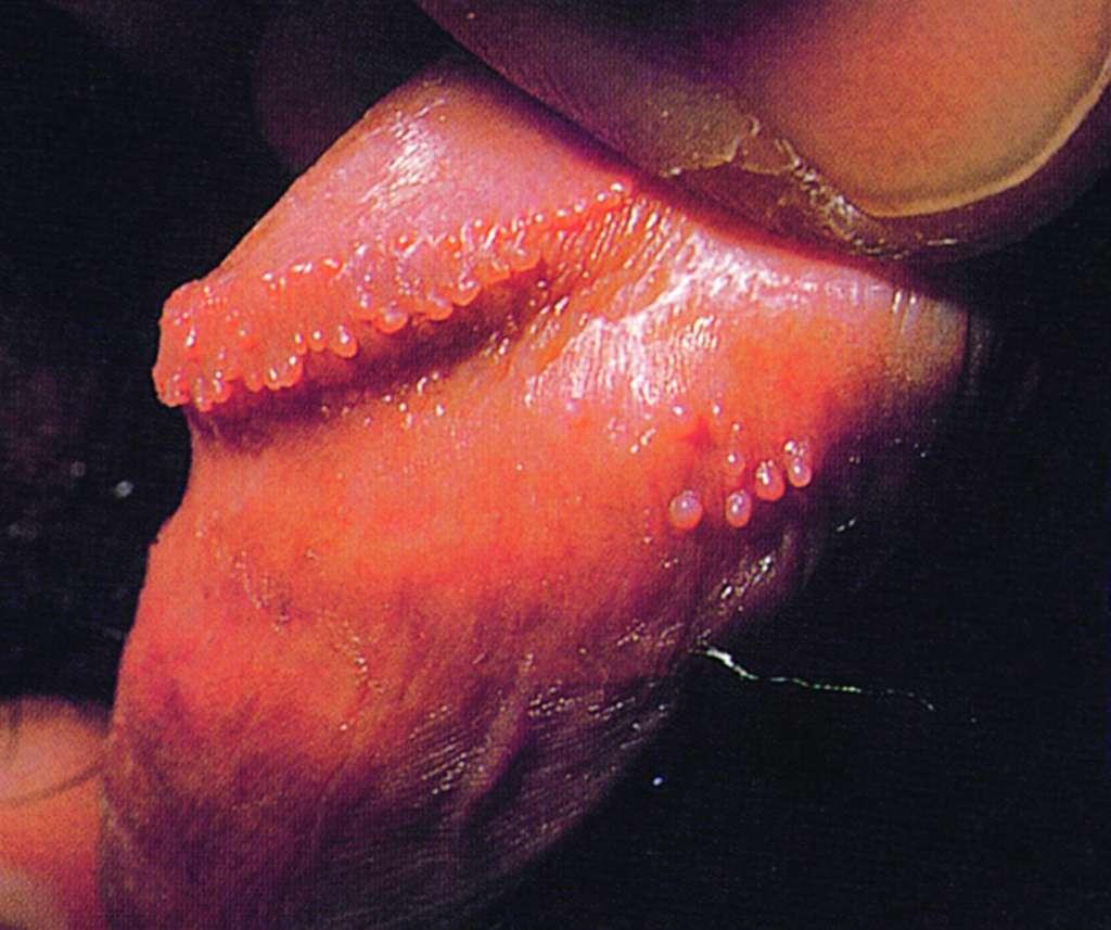 papilloma hirsutoid
