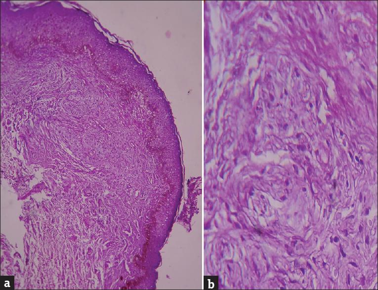 hirsutoid papillomas histology