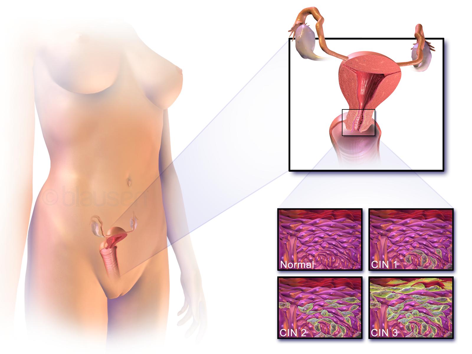 hpv cancer symptoms)