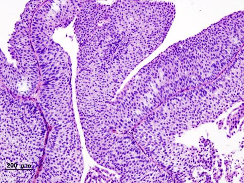Termenii unui tratament armonios al cancerului de prostată