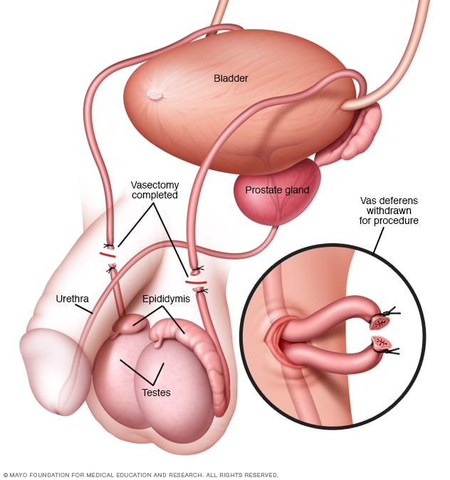 cancer testicular vasectomia