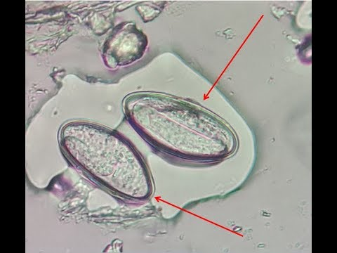papillary thyroid cancer development