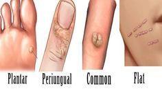 papilloma e verruche virus papiloma humano cancer cuello uterino
