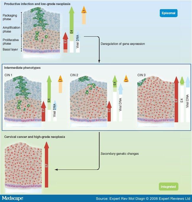 Diagramă de mărimi pentru chilot anti-varicoase