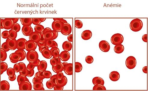 anemie v prvnim trimestru)