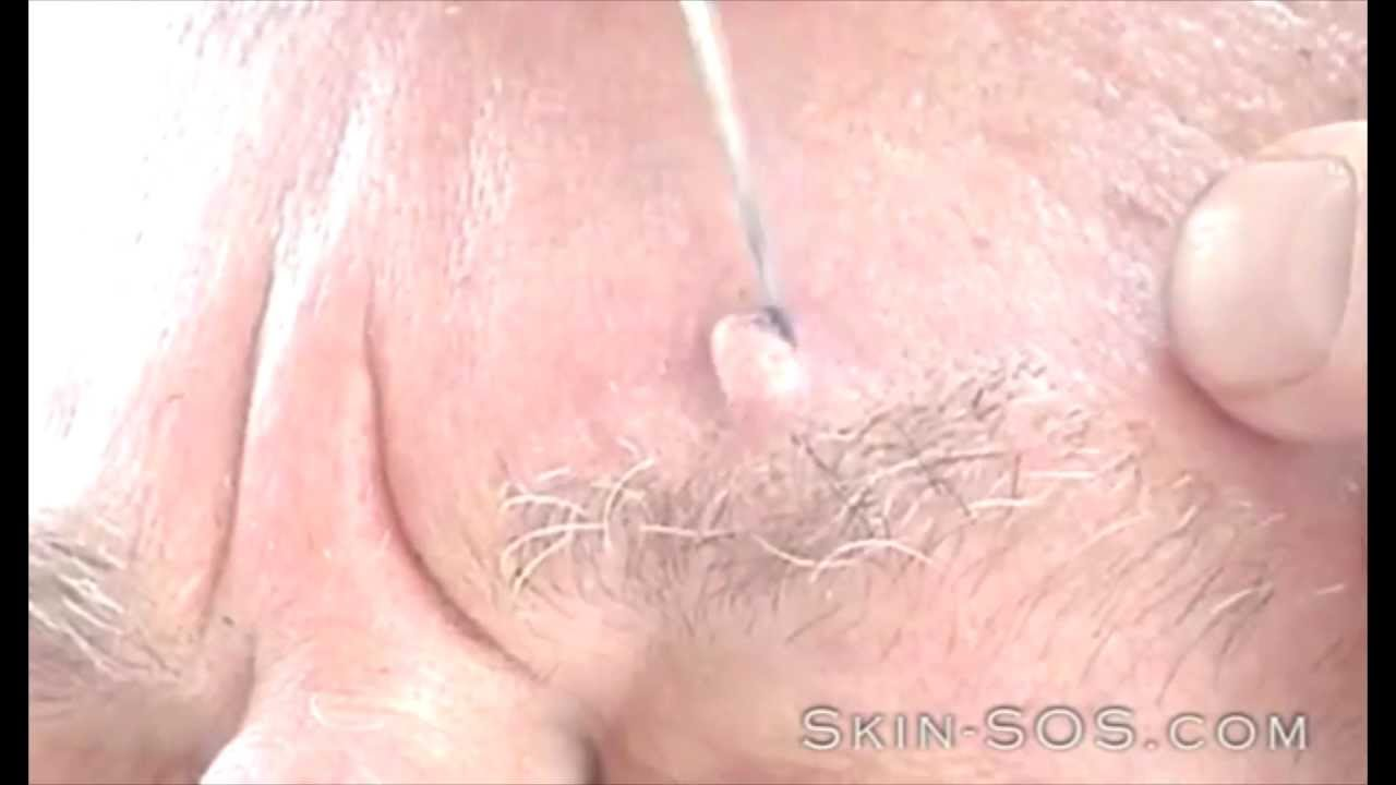 hpv on face treatment)