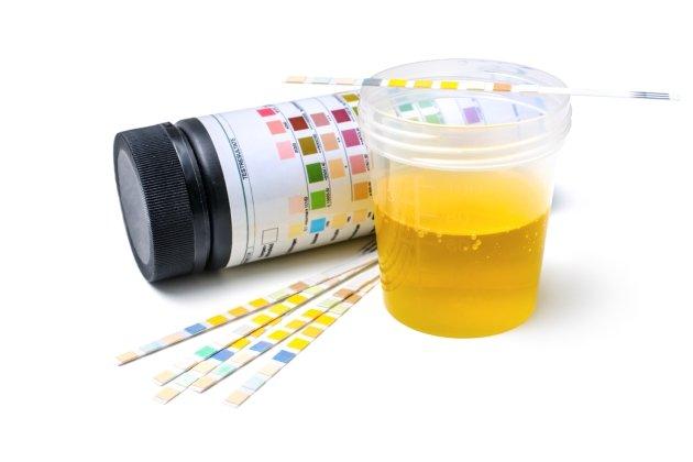 8 tipuri de urină care indică starea de sănătate