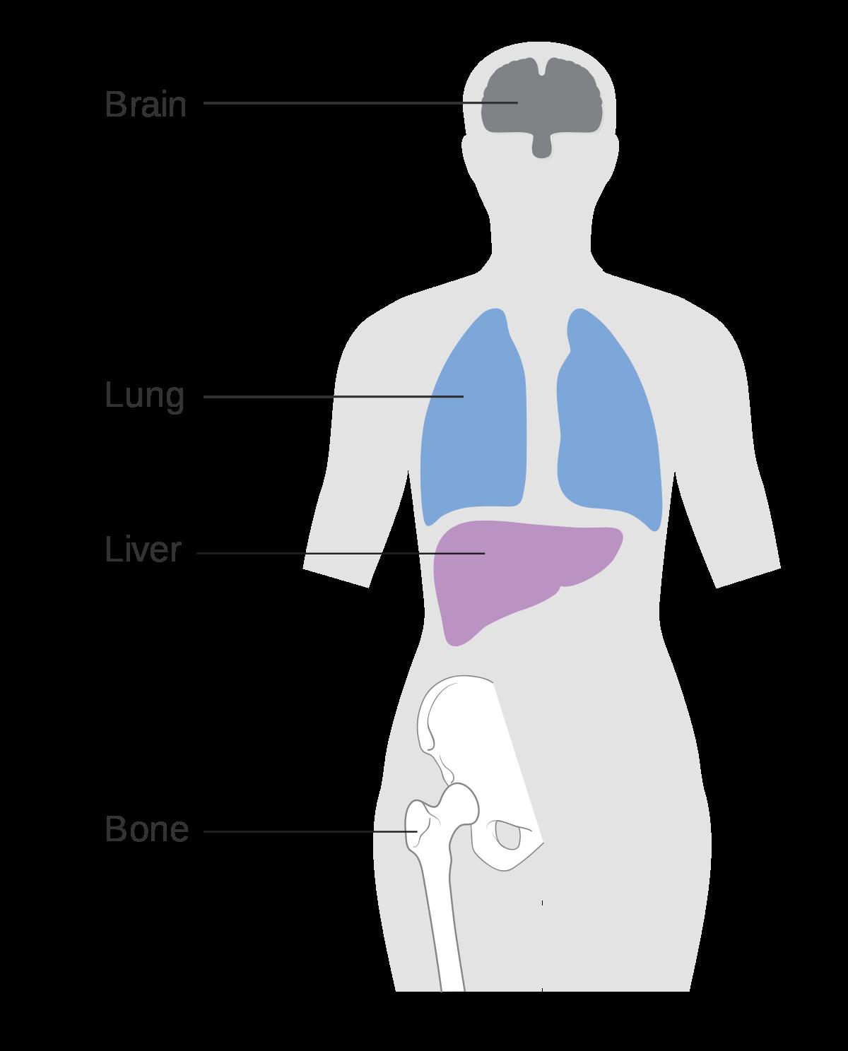 cancer metastatic definitie