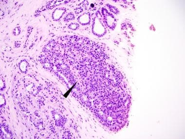 intraductal papilloma emedicine