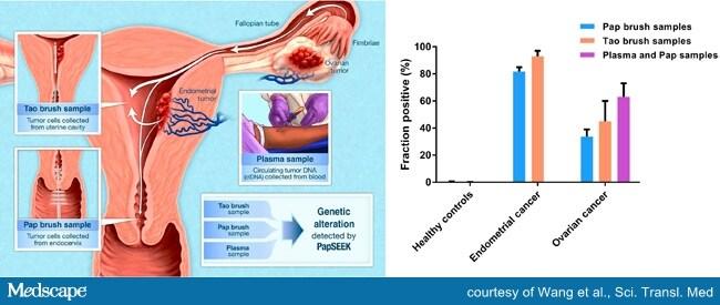 cancer ovarian test)