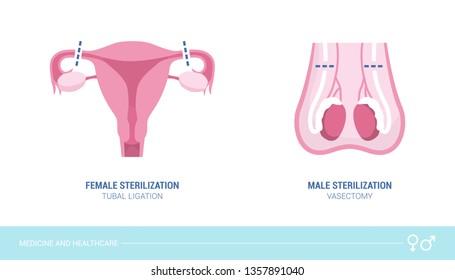 laryngeal papillomatosis def