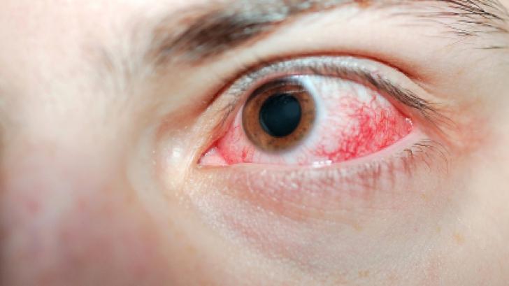 A fost diagnosticat cu cancer la ochi din cauza obiceiului banal pe care şi tu îl ai zilnic!