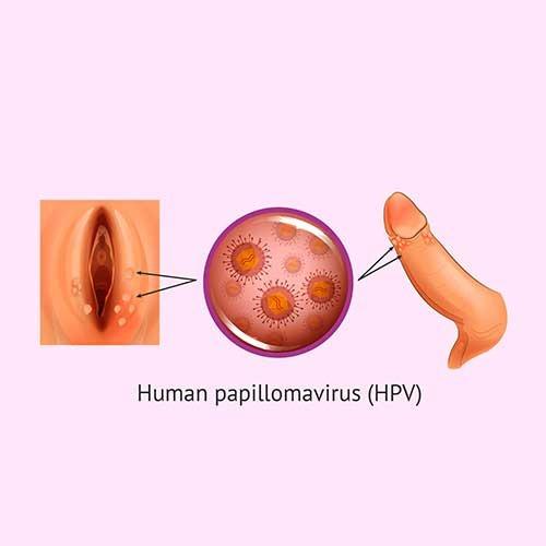 hpv and papilloma)