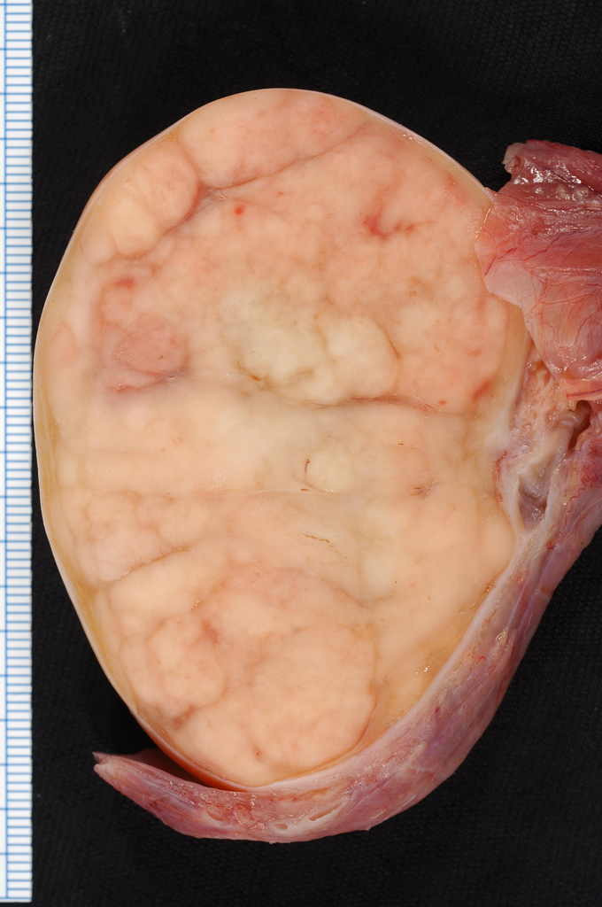 cancer testicular maligno)