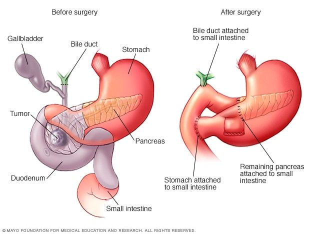 cancer pancreatic icd 10)