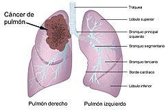 cancerul pulmonar cu celule mari