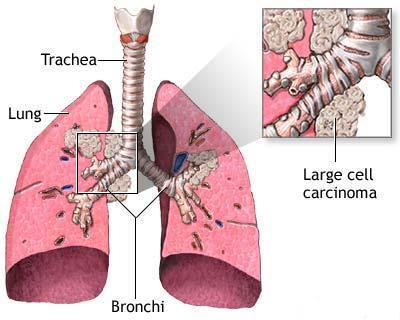 cancerul pulmonar cu celule mari hpv face warts