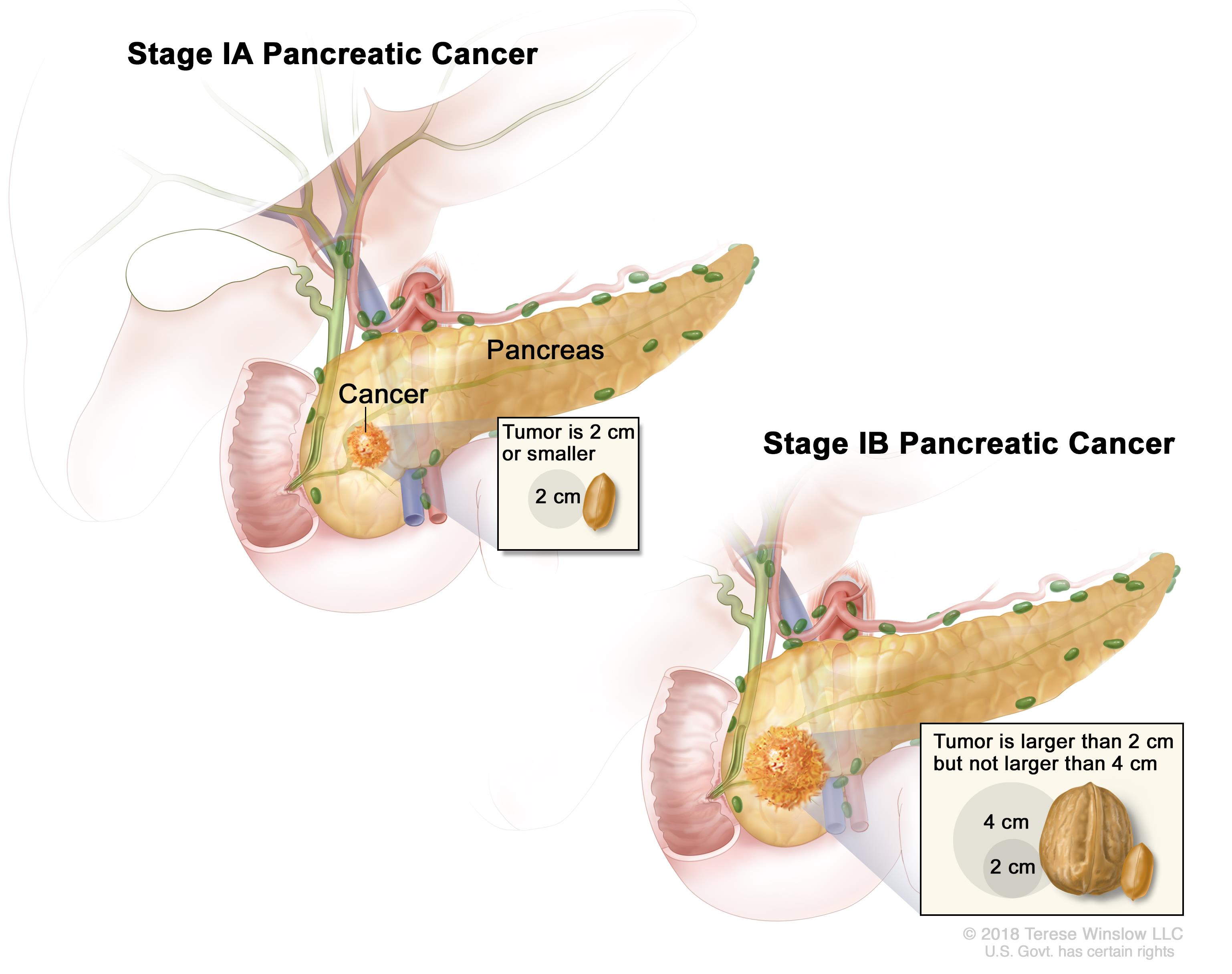 pancreatic cancer adenocarcinoma