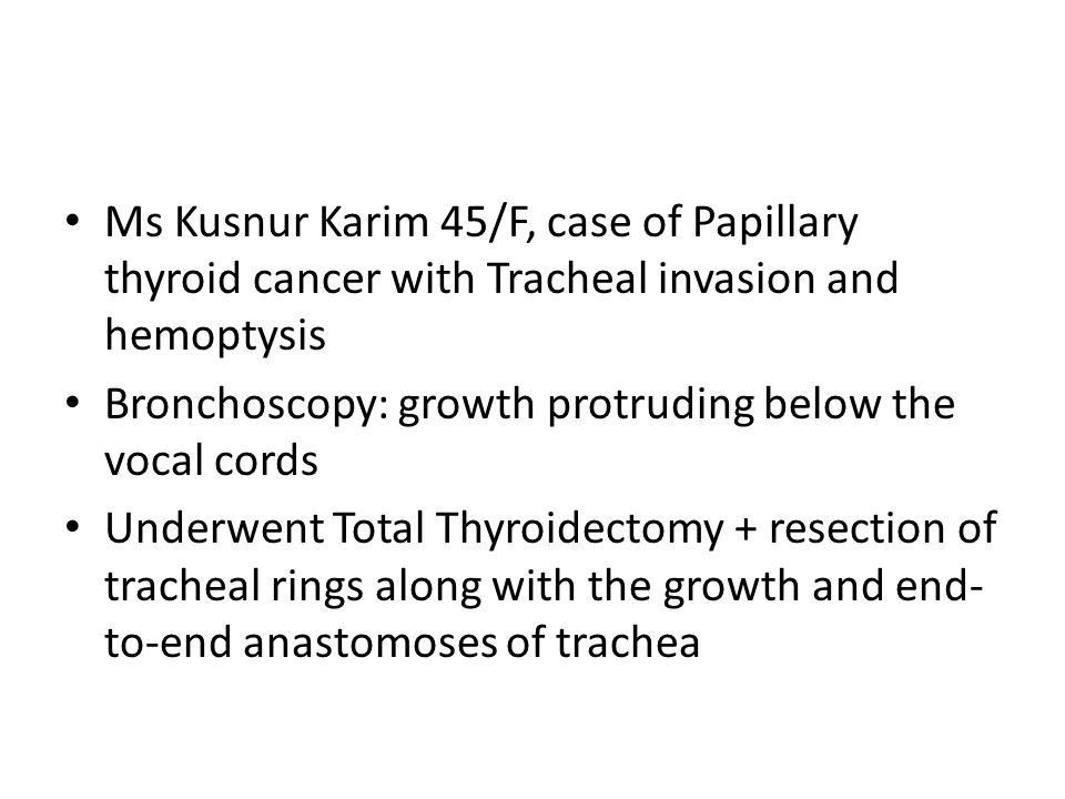 papillary thyroid cancer under 45)