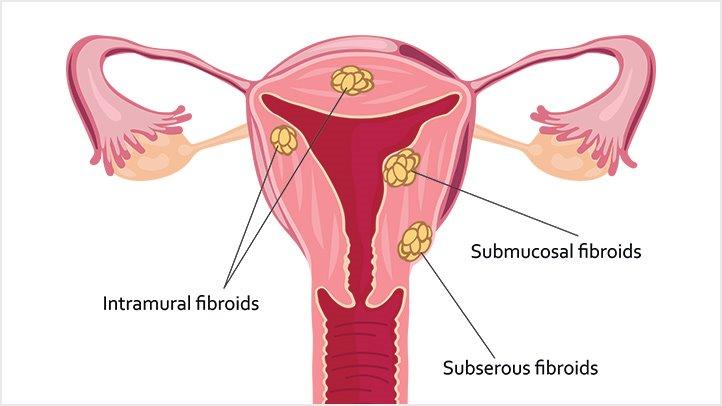 cancer uterine leiomyomas