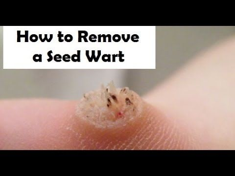 seed warts home remedy for removal