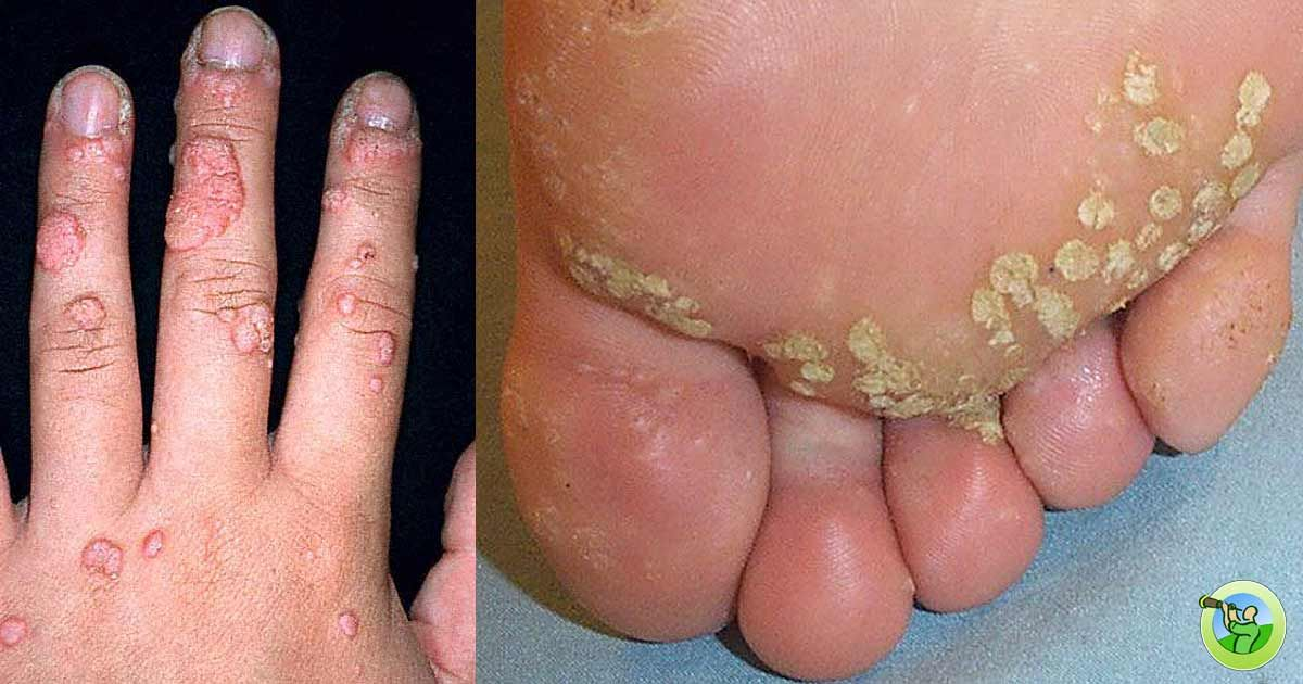 hpv virus and warts on feet