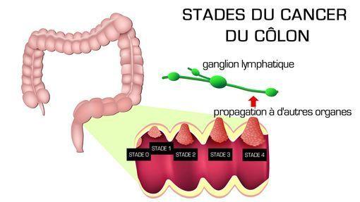 cancer colon stade 4