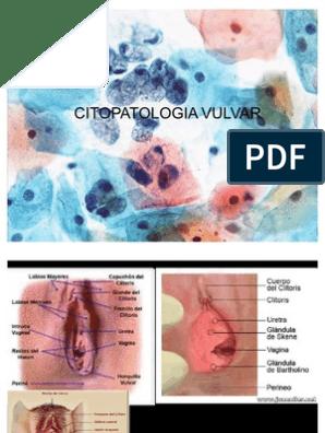 HPV - sfaturi | Forumul Medical ROmedic