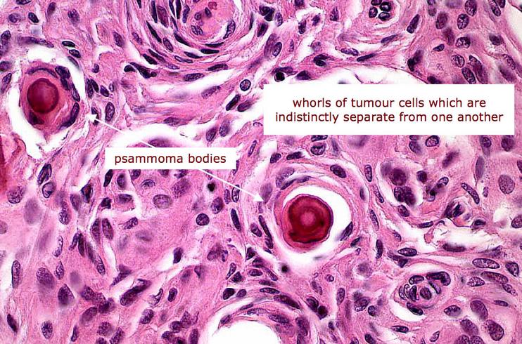 cancerul tiroidian tablou clinic