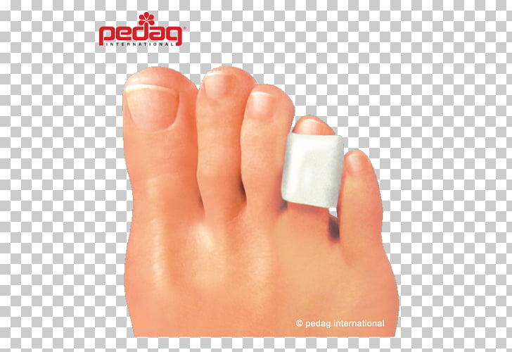 Category:Toes - Wikimedia Commons