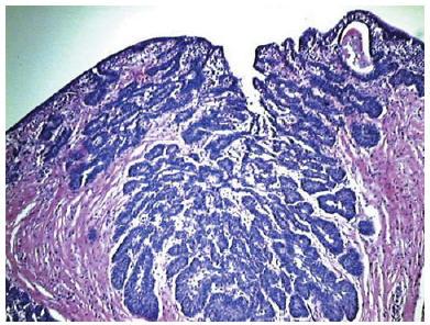 papilloma vescica benigno