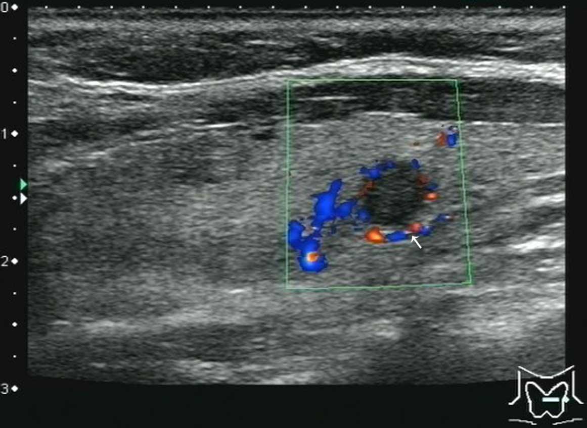 papillary lesion thyroid)