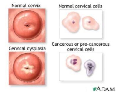 Atenţie, cancerul ovarian dă simptome prea târziu!