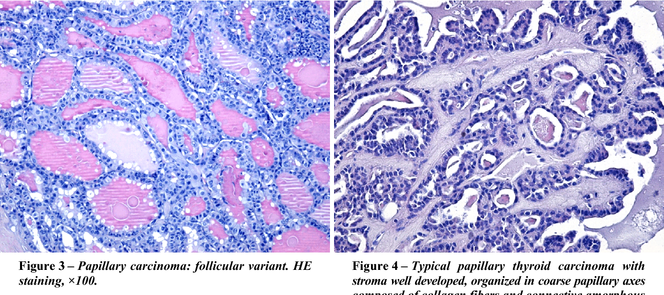papillary thyroid cancer histopathology)