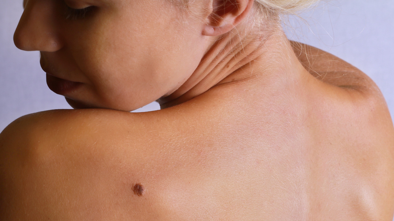 warts on older skin)