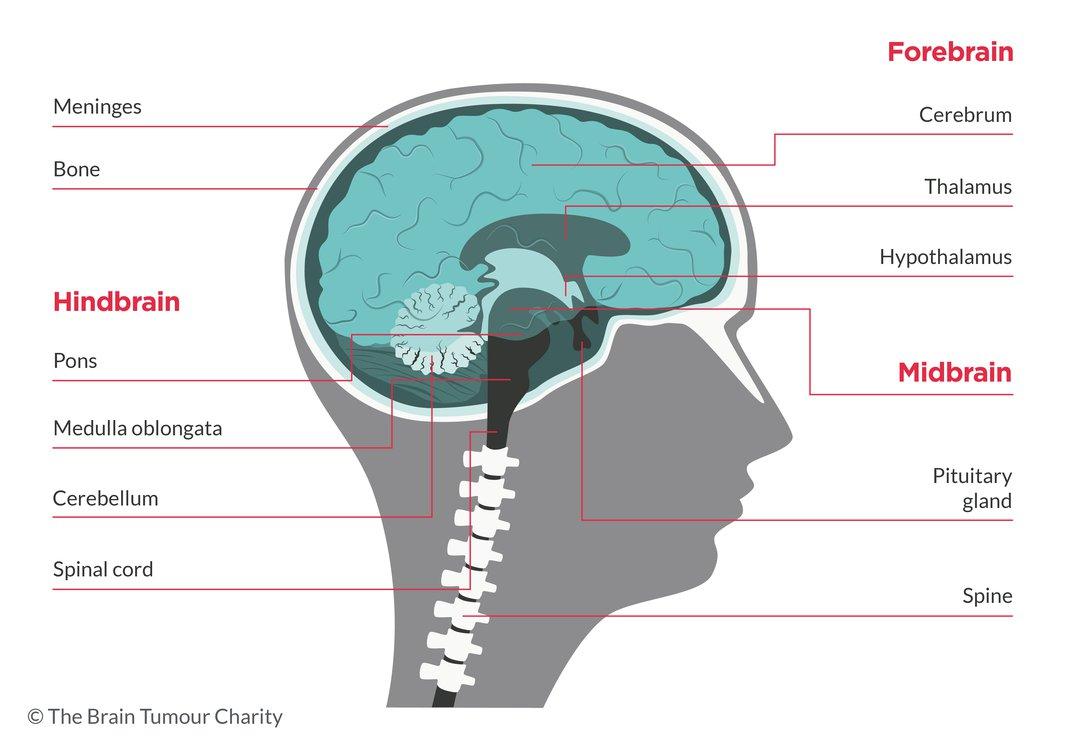 cancer trunchi cerebral)