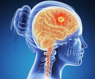 Cancer cerebral - Tot ce trebuie să ştii | Cancer
