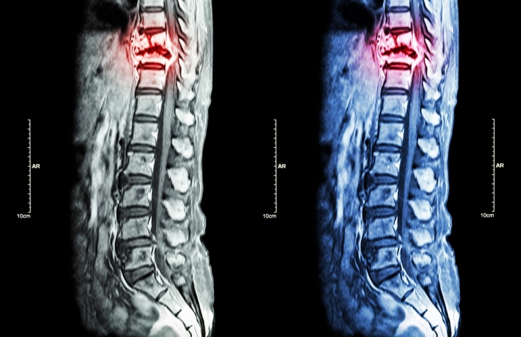 Tumorile coloanei vertebrale   Spitalul Monza