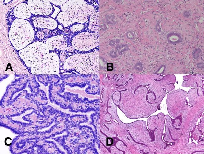 diffuse papillomatosis breast