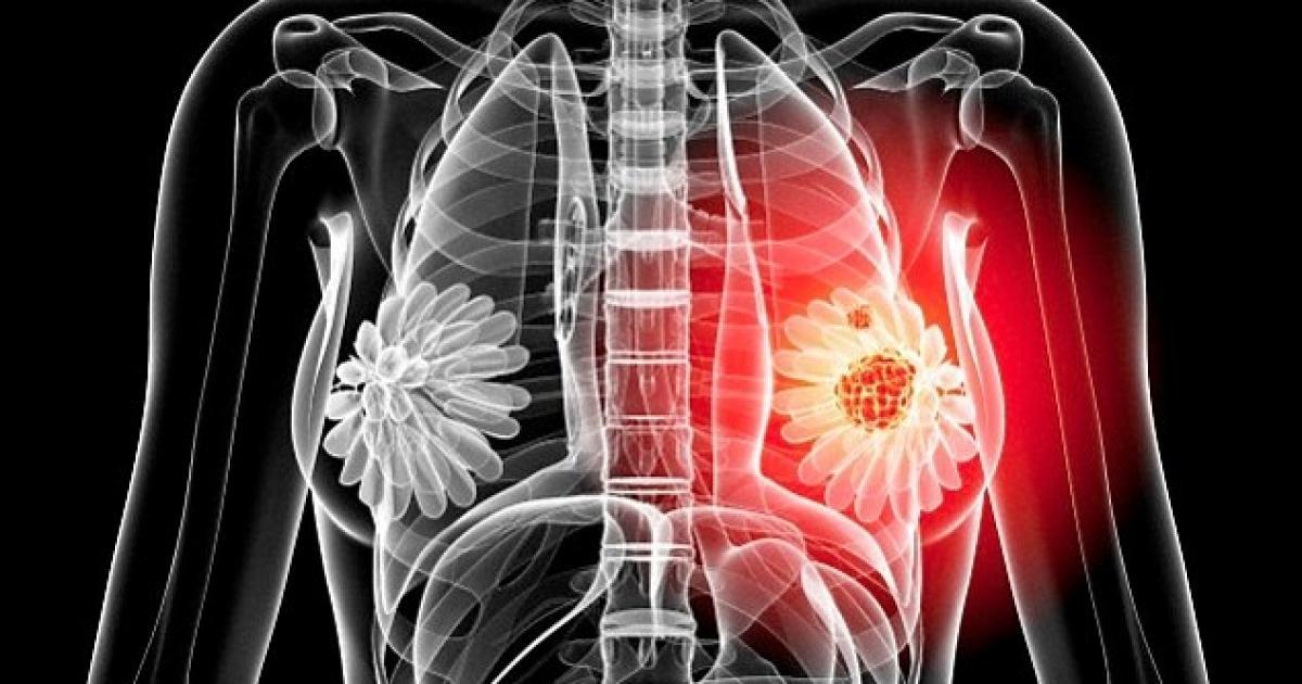 cancerul de san cu metastaze osoase)