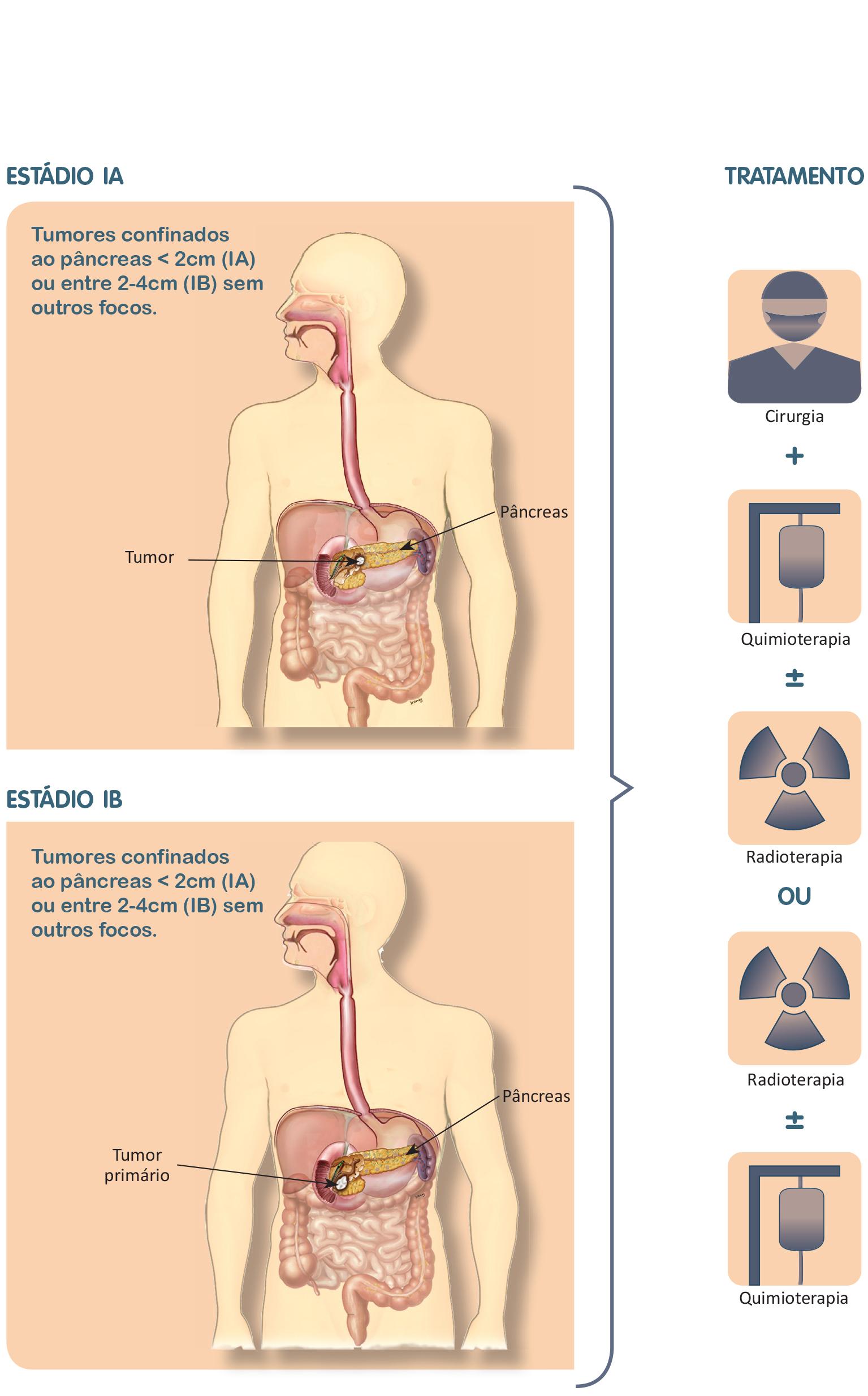 cancer de pancreas estagio 4